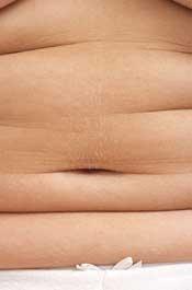 Fat Rolls
