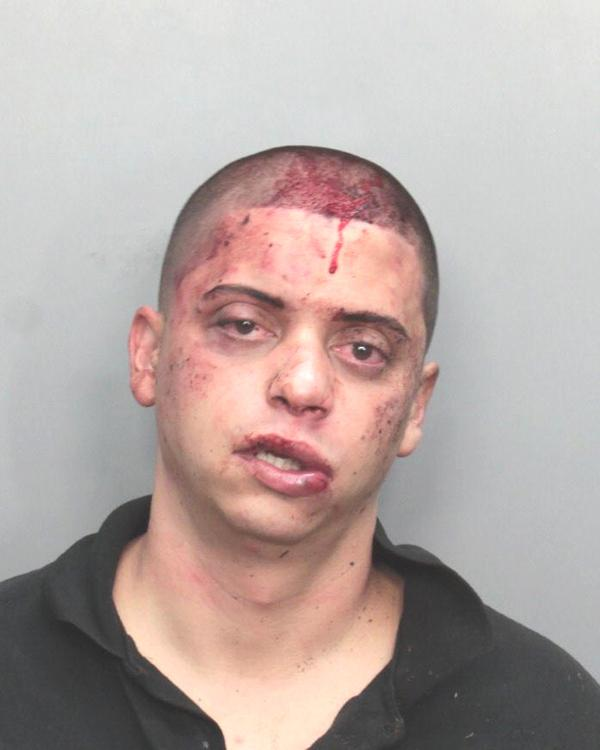 Arrested for resisting an officer with violence, battery.